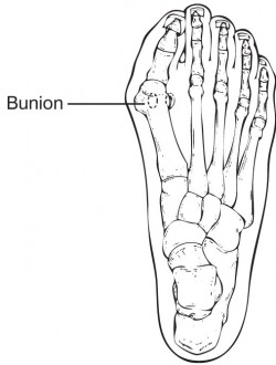 Bunion Diagram