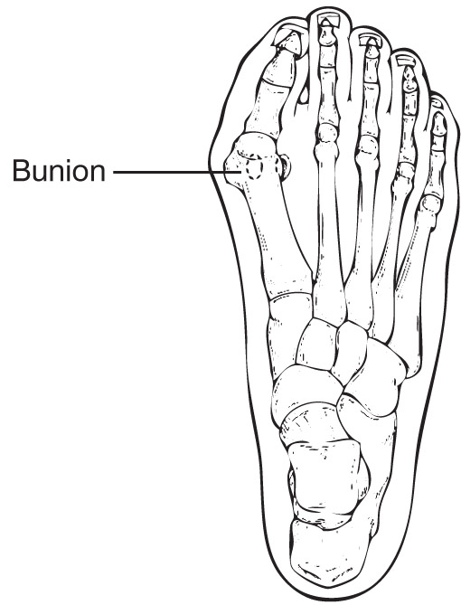 when should i consider bunion surgery
